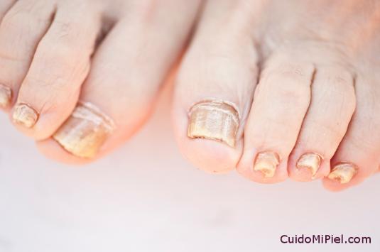 Infecciones en la Piel y Hongos en Uñas